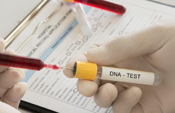 La sindrome da deplezione del dna mitocondriale