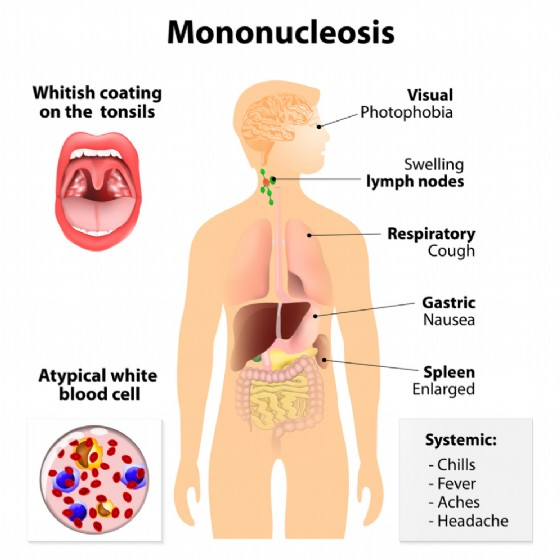 I sintomi della mononucloeosi