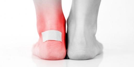 I rimedi naturali per le vesciche ai piedi