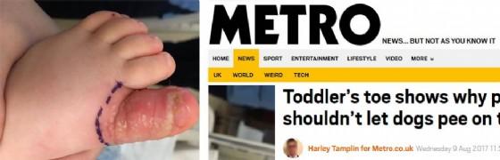 Screenshot della news pubblicata su Metro della bimba e l'alluce infettato
