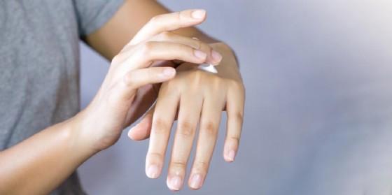 crema steroidea per eczema