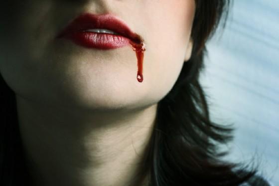 Ematoidrosi in una giovane ragazza che suda sangue