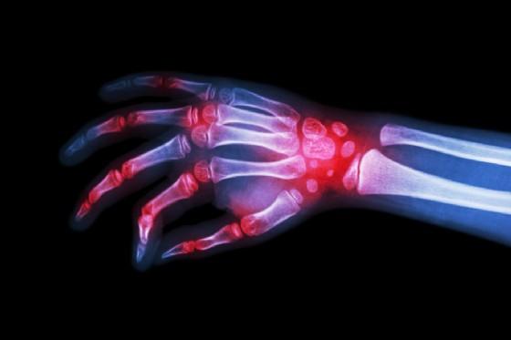 Oro nella mano sottoposta ad agopuntura