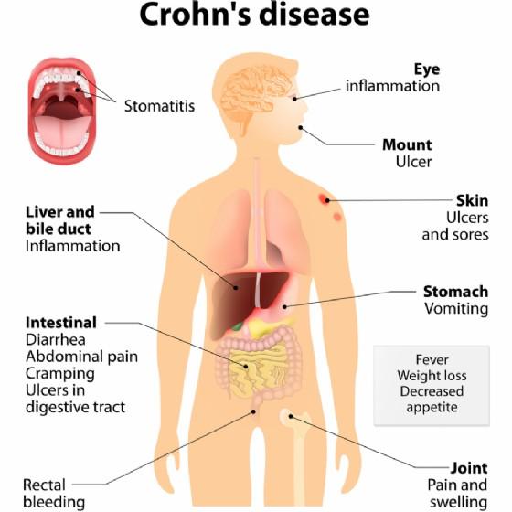 Sintomi del morbo di Crohn