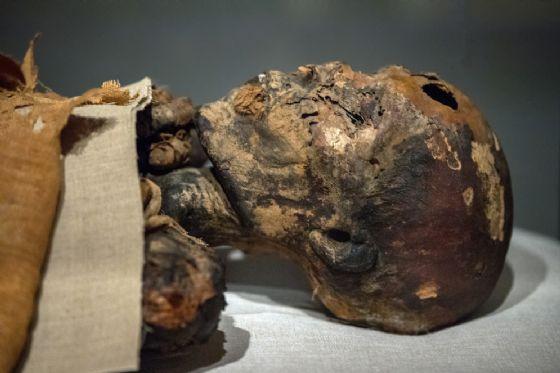 L'epatite esisteva già 450mila anni fa