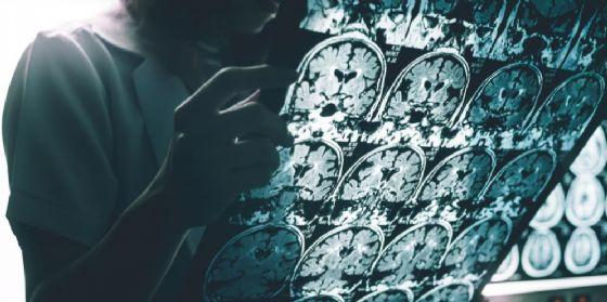 Ricerca sull'Alzheimer