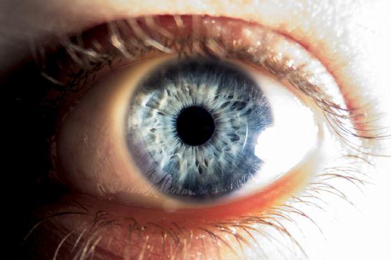Vermi nell'occhio, cos'è la Thelazia Gulosa