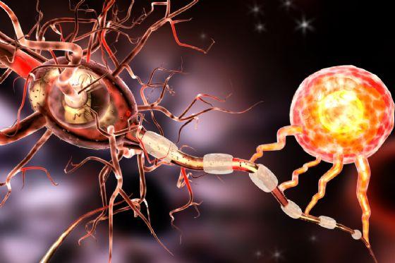 Sclerosi multipla: la cura dalle cellule progenitrici che riparano la mielina