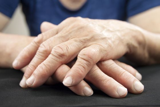 Artrite reumatoide, chi ne soffre muore prima