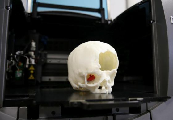 Meyer, grazie alla stampa 3D via il tumore senza toccare il cervello