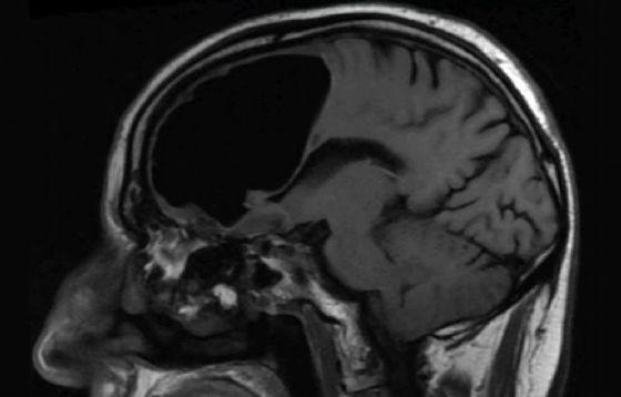 Nell'immagine la scansione del cervello dell'uomo che mostra la sacca d'aria
