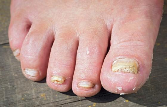 Funghi delle unghie (onicomicosi)