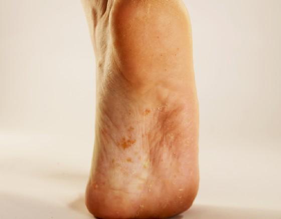 Funghi del piede