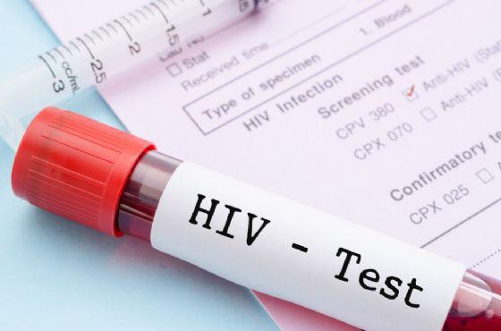 6mila persone hanno l'HIV ma non sanno di averlo