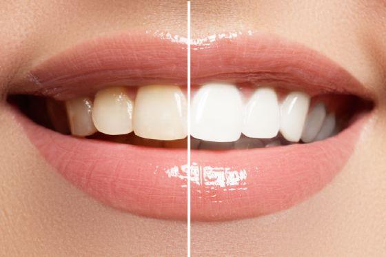 Protesi dentali in 3D per prevenire infezioni