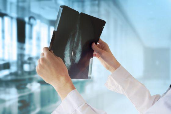 Centinaia di donne morta di cancro per un errore del pc?