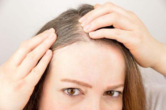 I capelli bianchi potrebbero comparire a causa di infezioni