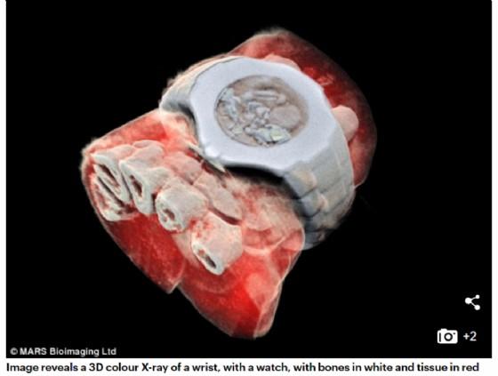 Radiografia in 3D che mostra il polso di un uomo con il suo orologio