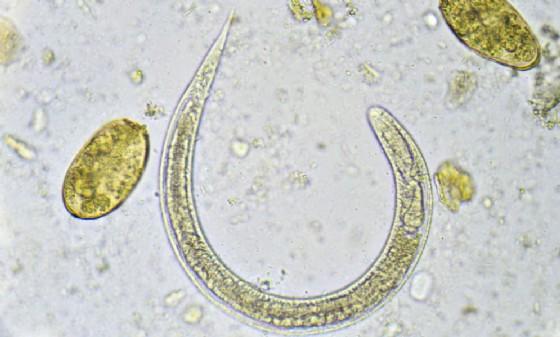 Il nematode Strongyloides stercoralis al microscopio