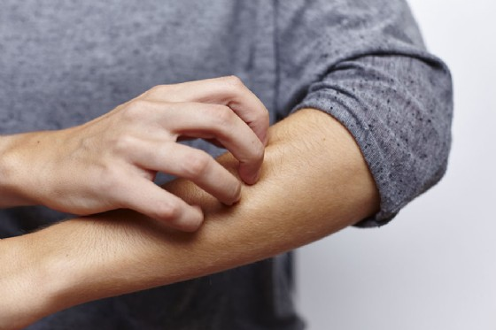 Infiammazione della pelle e diabete