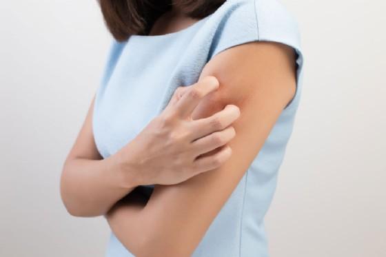 Abbiamo un batterio potenzialmente mortale sulla pelle: ecco perché è sottovalutato