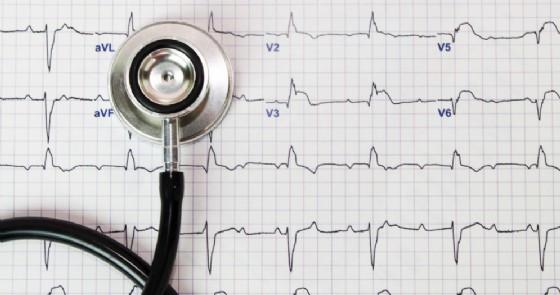 Cossato: da giovedì 6 dicembre l'elettrocardiogramma con accesso diretto