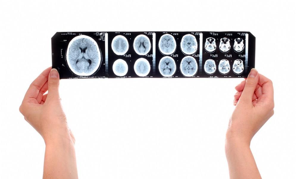 Ictus, iniezioni di staminali possono rimediare certi danni al cervello