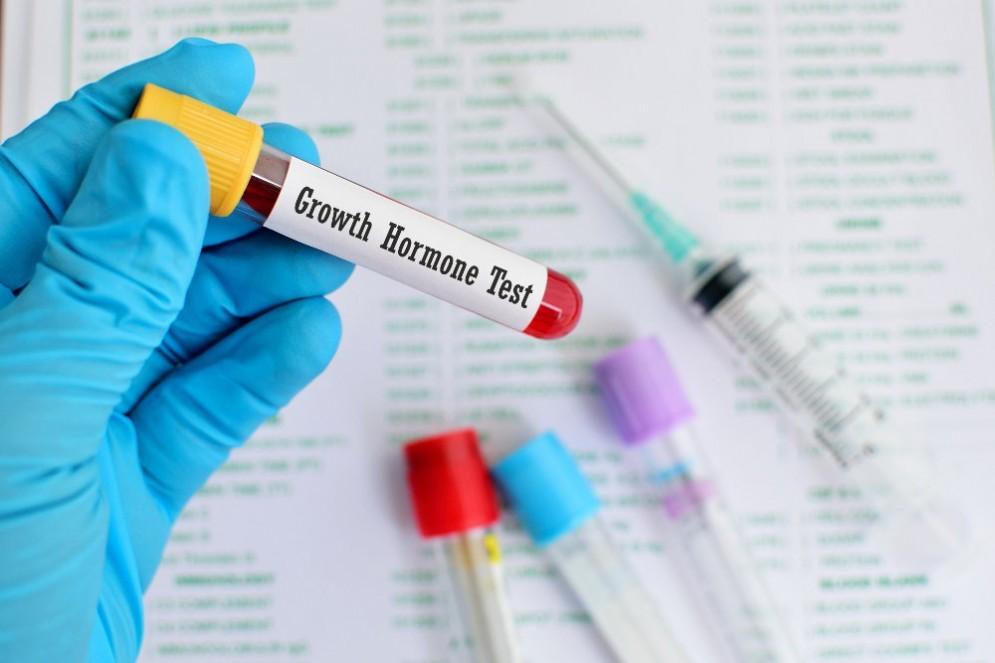 GnRH test