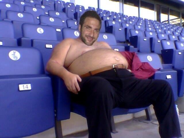 La Juventus confida di rimettere a lucido Higuain in poche settimane