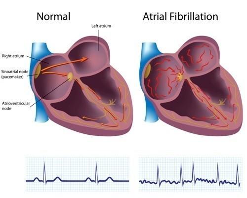 La fibrillazione atriale differenza anatomia ed ECG