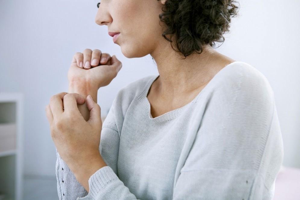 Psoriasi e artrite psoriasica