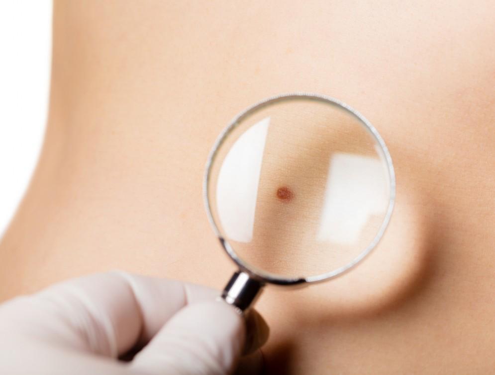 Farmaci per il melanoma