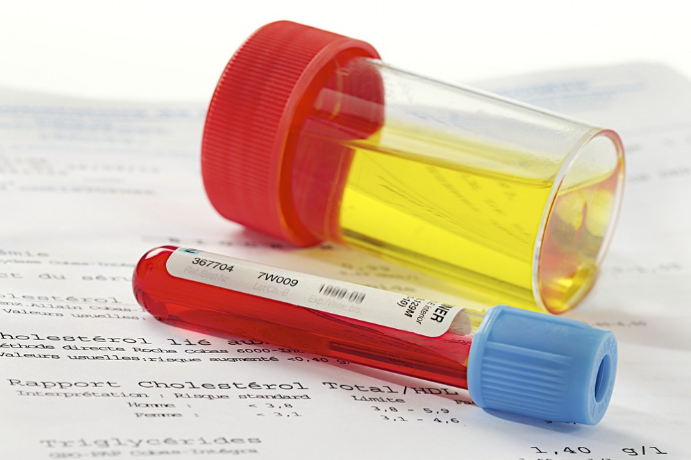 Leucociti nelle urine