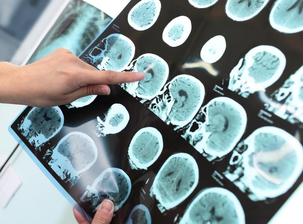Alzheimer, scoperta l'origine in un'area del cervello che regola l'umore