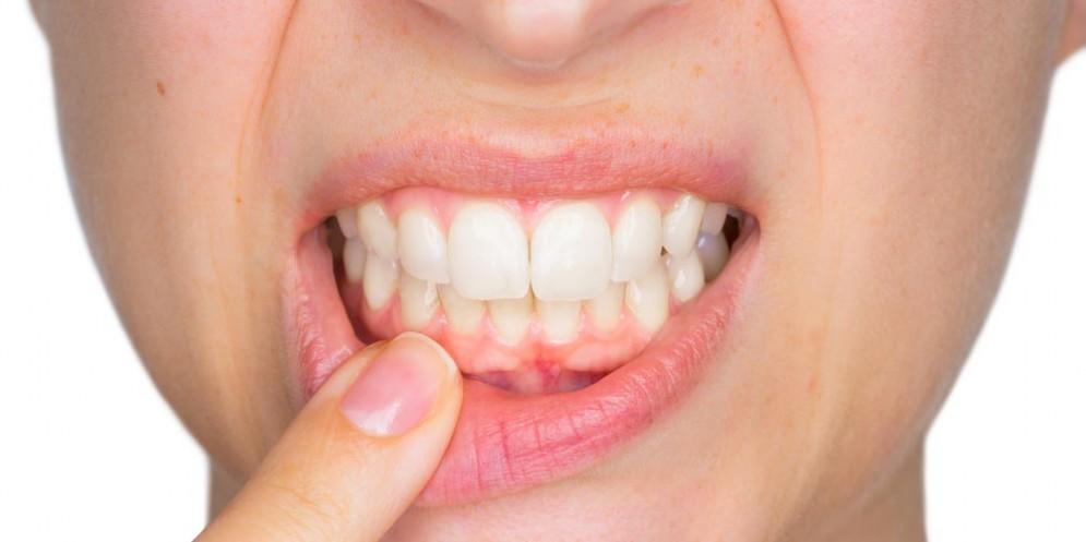 Parodontite, piorrea, periodontite possono far venire l'Alzheimer