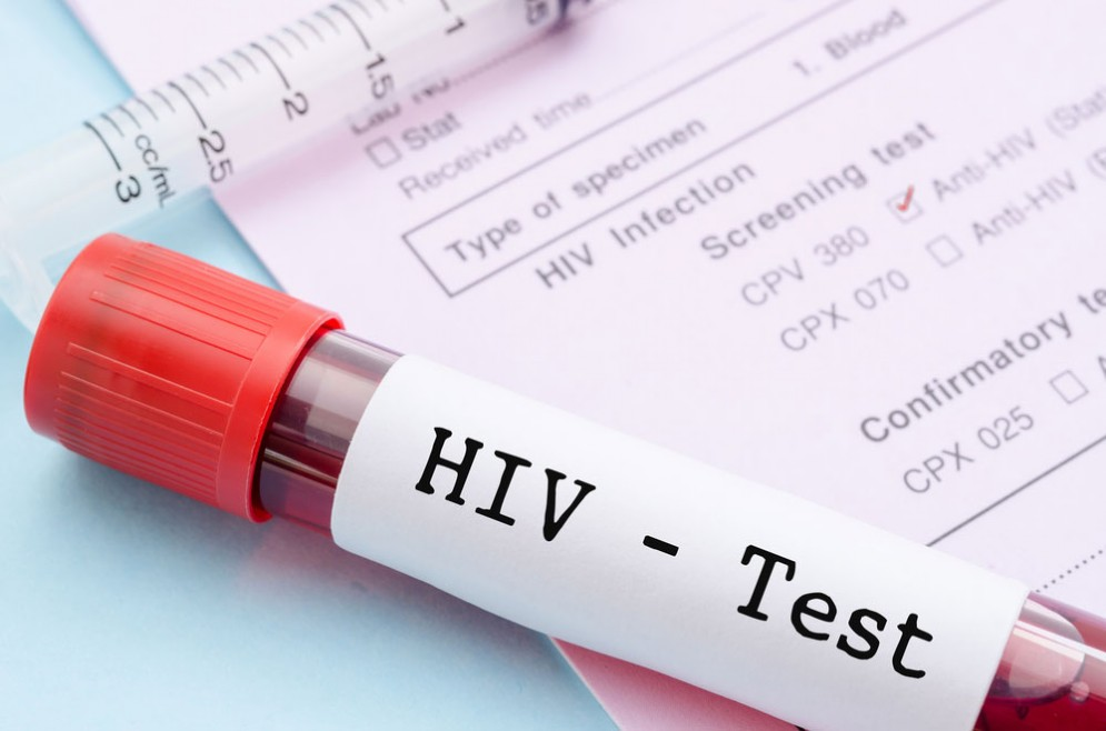 HIV e AIDS, c'è un anticorpo trifasico che funziona