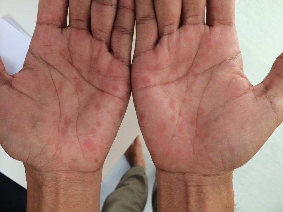 Sifilide nel palmo della mano