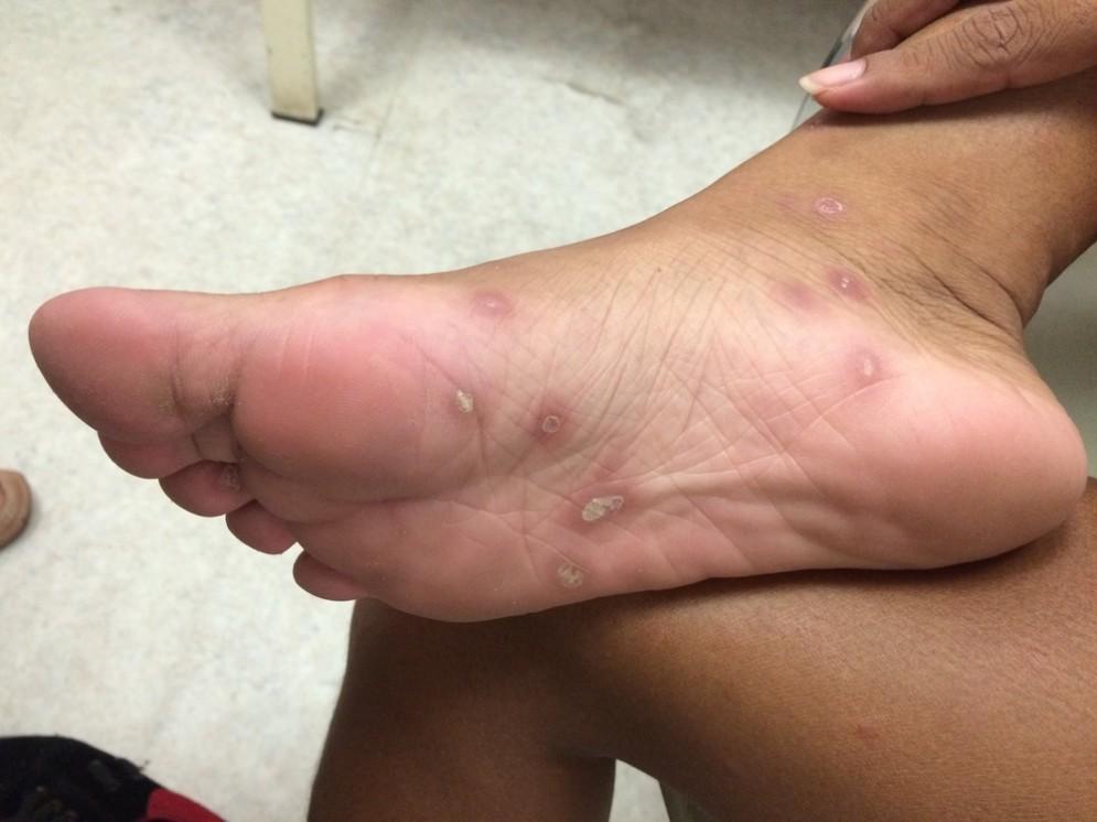 Sifilide nella pianta del piede