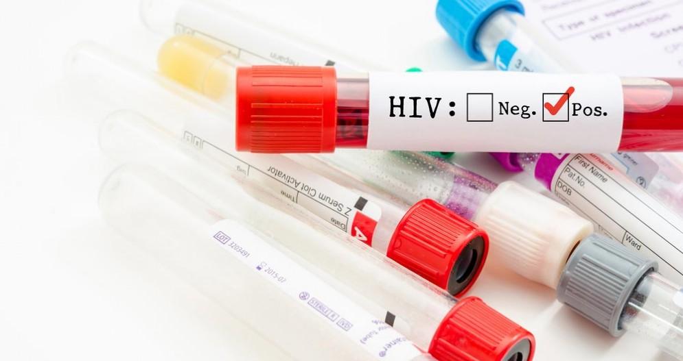 HIV, scoperto il meccanismo dell'immunodeficienza