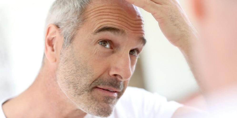 Troppi capelli bianchi  Forse sei stressato 3638577e79ce