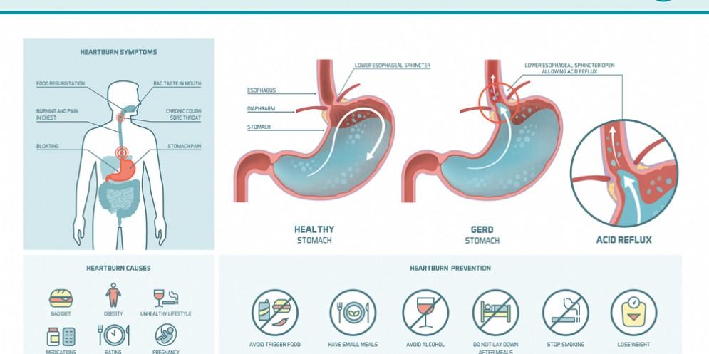 Sintomi e cause del reflusso gastroesofageo