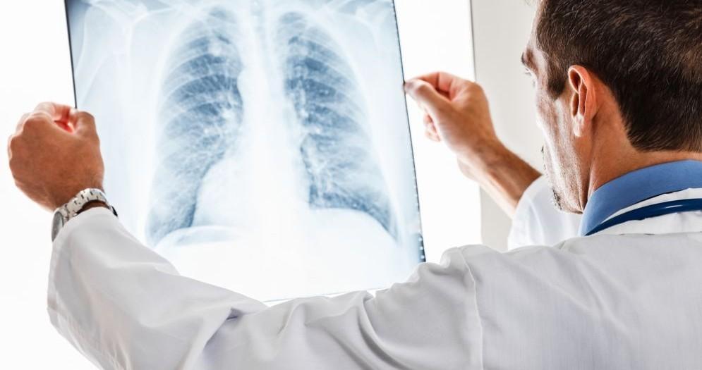 Sintomi del cancro ai polmoni