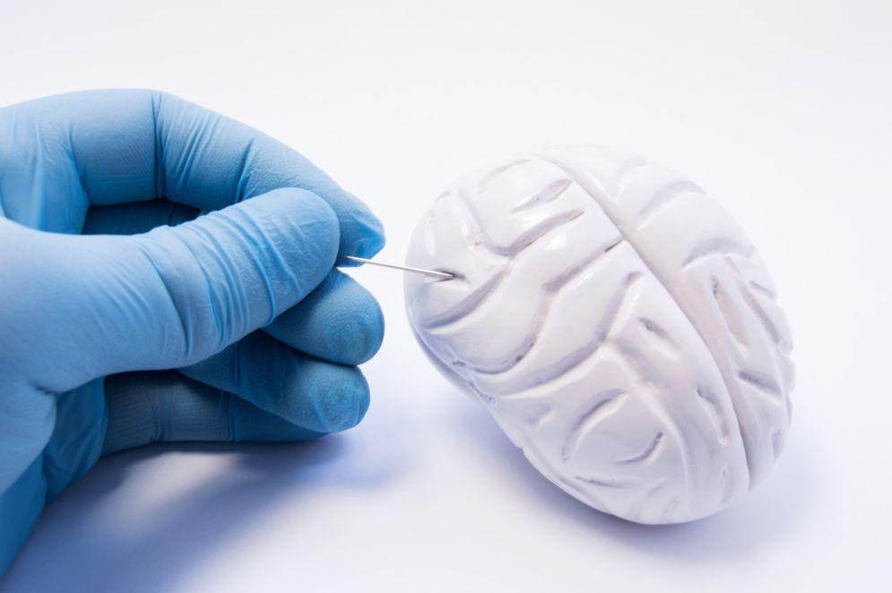 Diagnosi precoce del morbo di Parkinson e demenza