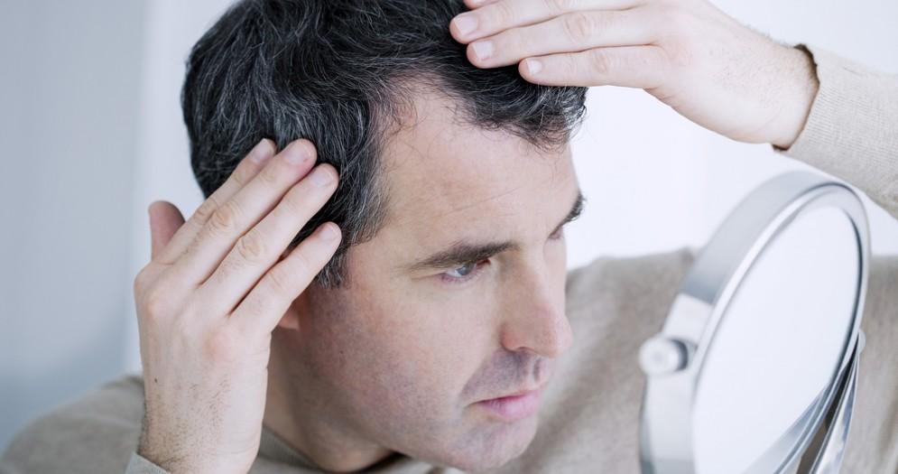 Trapianto di capelli in Turchia: la soluzione definitiva con la tecnica FUE
