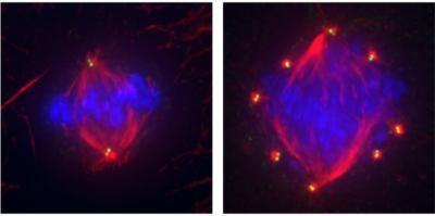 Le cellule sane (immagine a sinistra) mostrano quattro centrioli, un numero normale (in giallo). Al contrario, le cellule del cancro al seno (triplo negativo) hanno centrioli extra (qui 16, immagine a destra).
