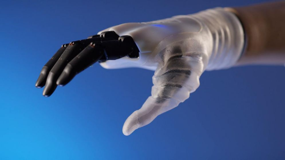 La mano bionica che dà speranza alle persone amputate