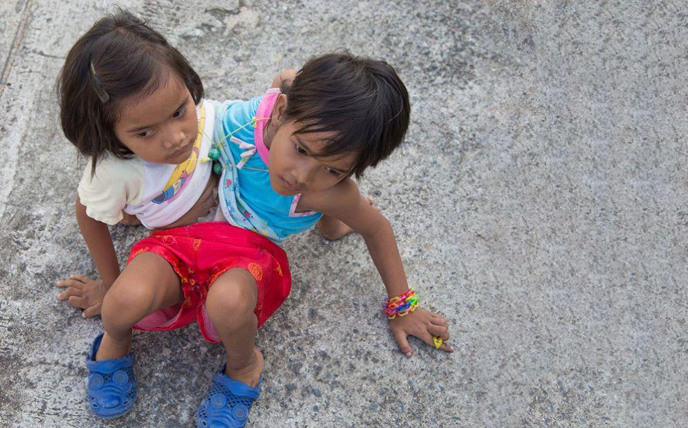 Gemelle siamesi in Thailandia - Immagine rappresentativa
