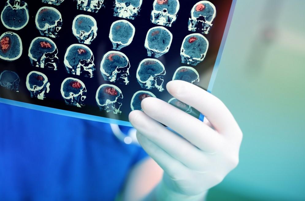 Pensano sia menopausa invece ha un tumore al cervello