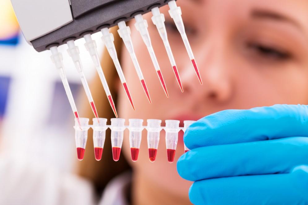 Eseguito con successo il trapianto di staminali nei pazienti con sclerosi multipla