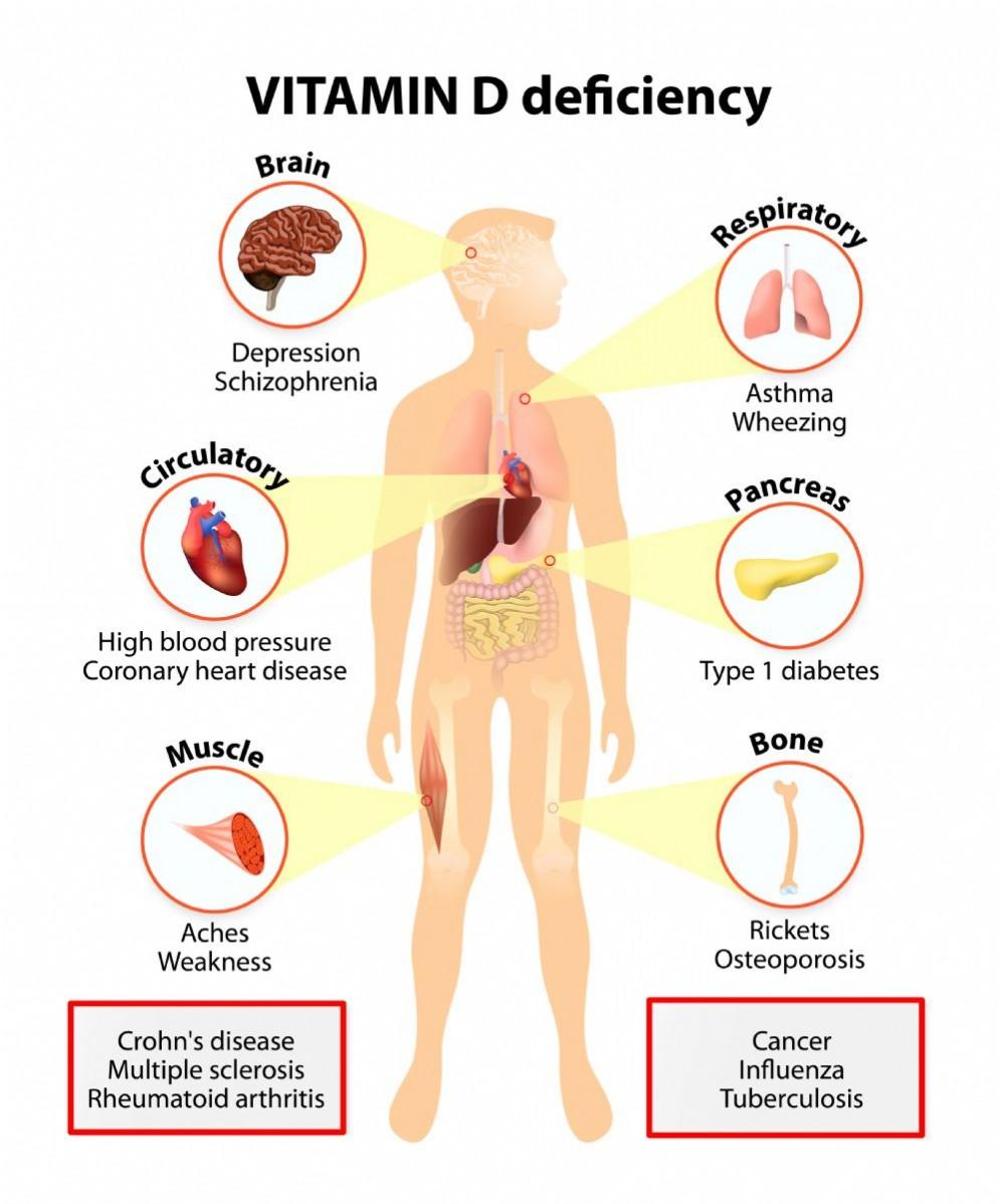 I sintomi di una carenza di vitamina D